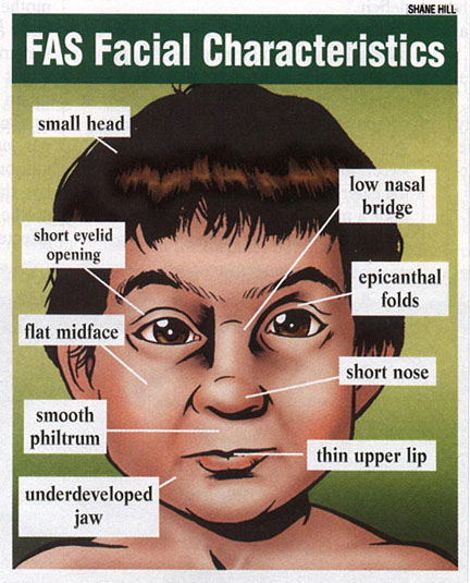 Fetal alchol syndrome facial